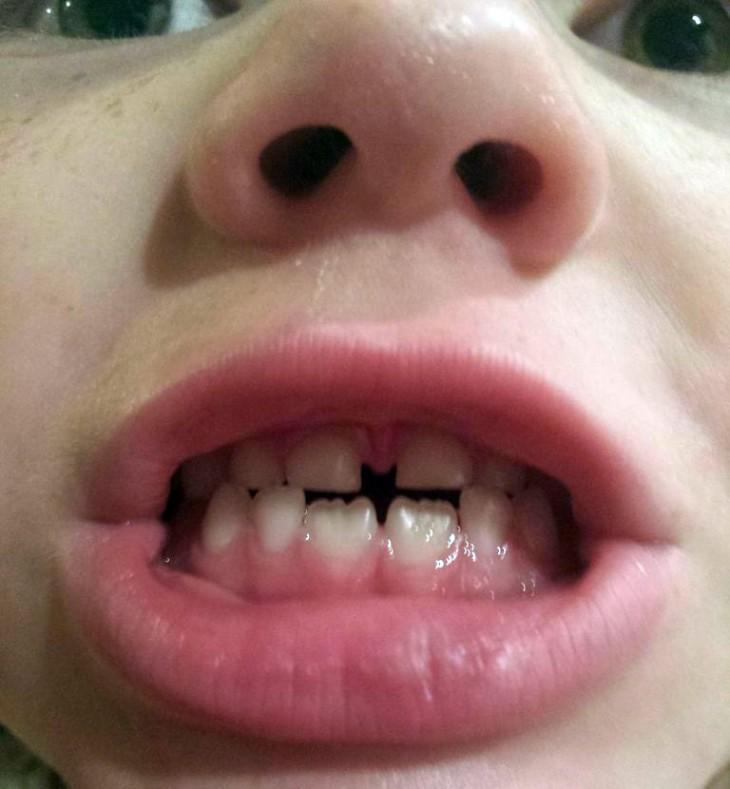 Die Batman-Zahnlücke